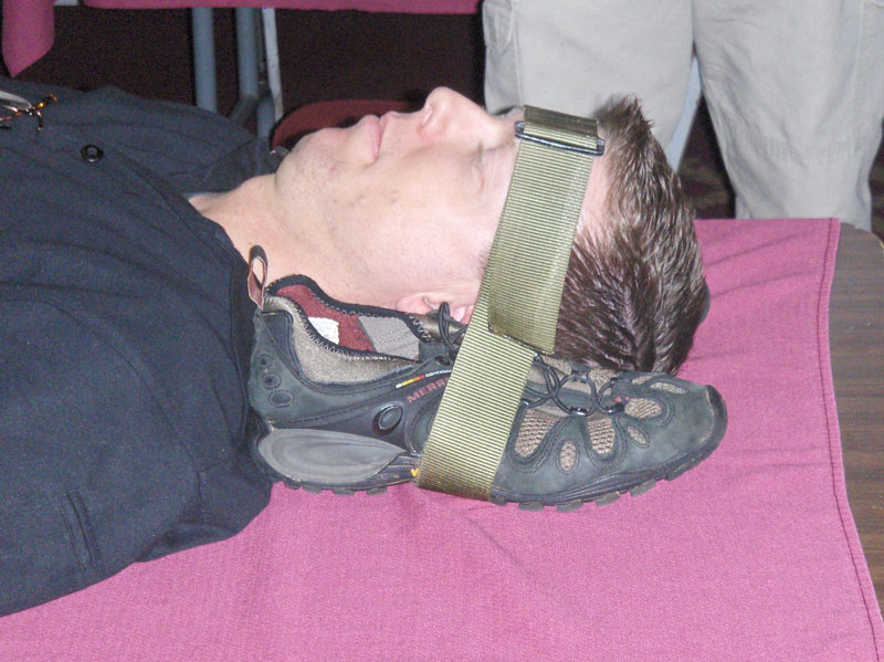 First Aid 103  Seizures And Head Injuries