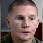 William Kyle Carpenter Miraculous Recovery